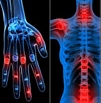 rheumatology_evercare-hospital-dhaka Hospital Specialities