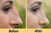 p_r_c_13 Plastic, Reconstructive & Cosmetic Surgery